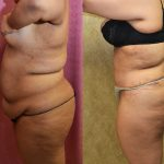 Tummy Tuck Plus Size Before & After Patient #11060