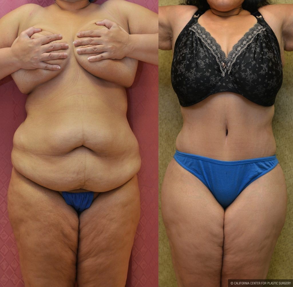 Tummy Tuck Plus Size Before & After Patient #11065