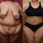 Tummy Tuck Plus Size Before & After Patient #11070