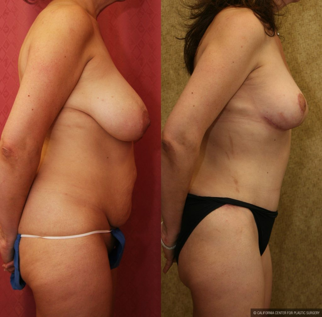 Tummy Tuck Small Size Before & After Patient #11079