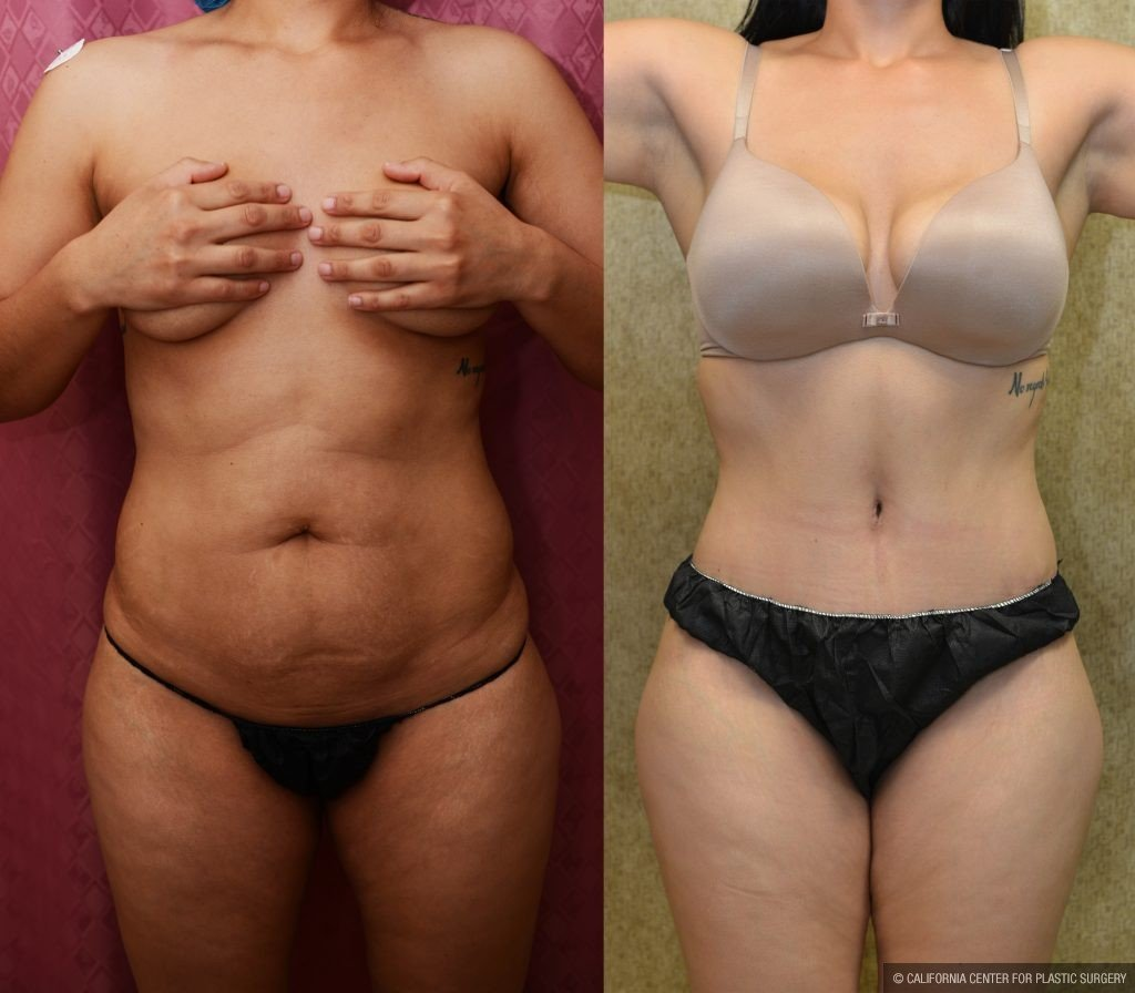 Tummy Tuck Small Size Before & After Patient #11087