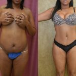 Tummy Tuck Medium Size Before & After Patient #11092