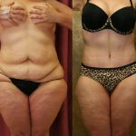 Tummy Tuck Plus Size Before & After Patient #11029