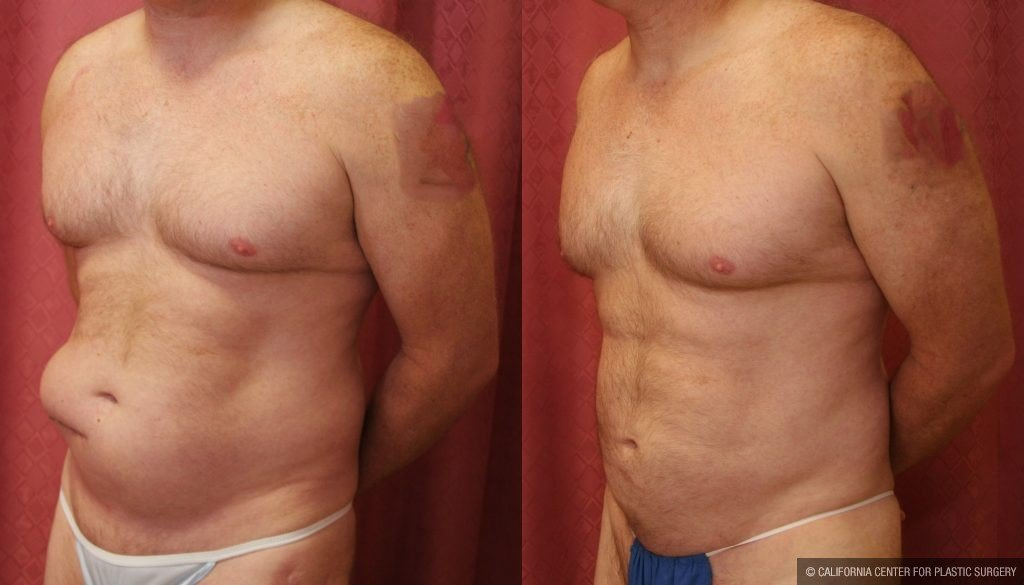 Male Breast Reduction Before & After Patient #10958