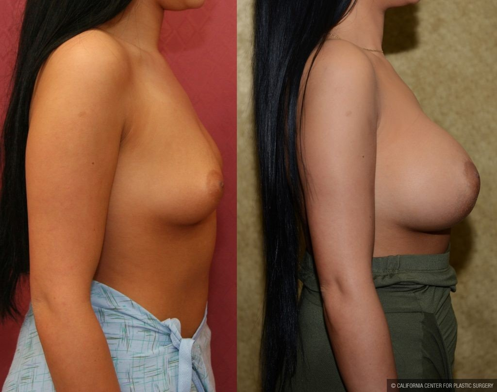 Breast Augmentation Before & After Patient #10799