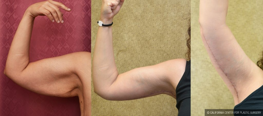 Arm Lift (Brachioplasty) Before & After Patient #10840