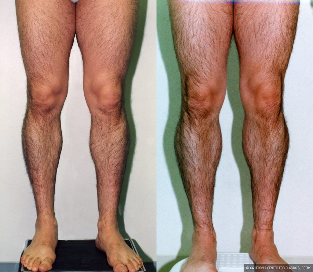 Calf Augmentation Before & After Patient #10912