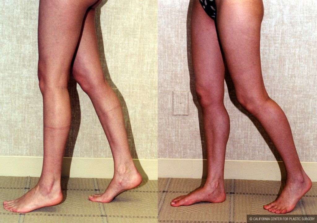 Calf Augmentation Before & After Patient #10916