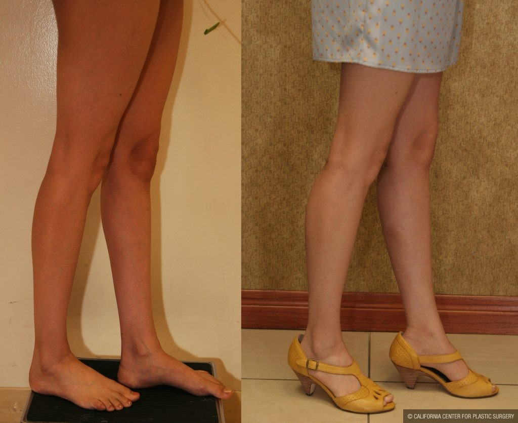Calf Augmentation Before & After Patient #10855