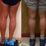 Calf Augmentation Before & After Patient #10860