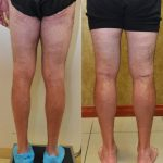 Calf Augmentation Before & After Patient #10873