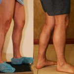 Calf Augmentation Before & After Patient #10877