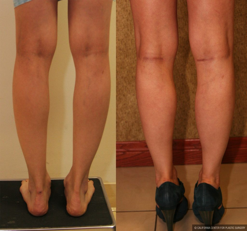 Calf Augmentation Before & After Patient #10888