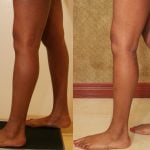 Calf Augmentation Before & After Patient #10893
