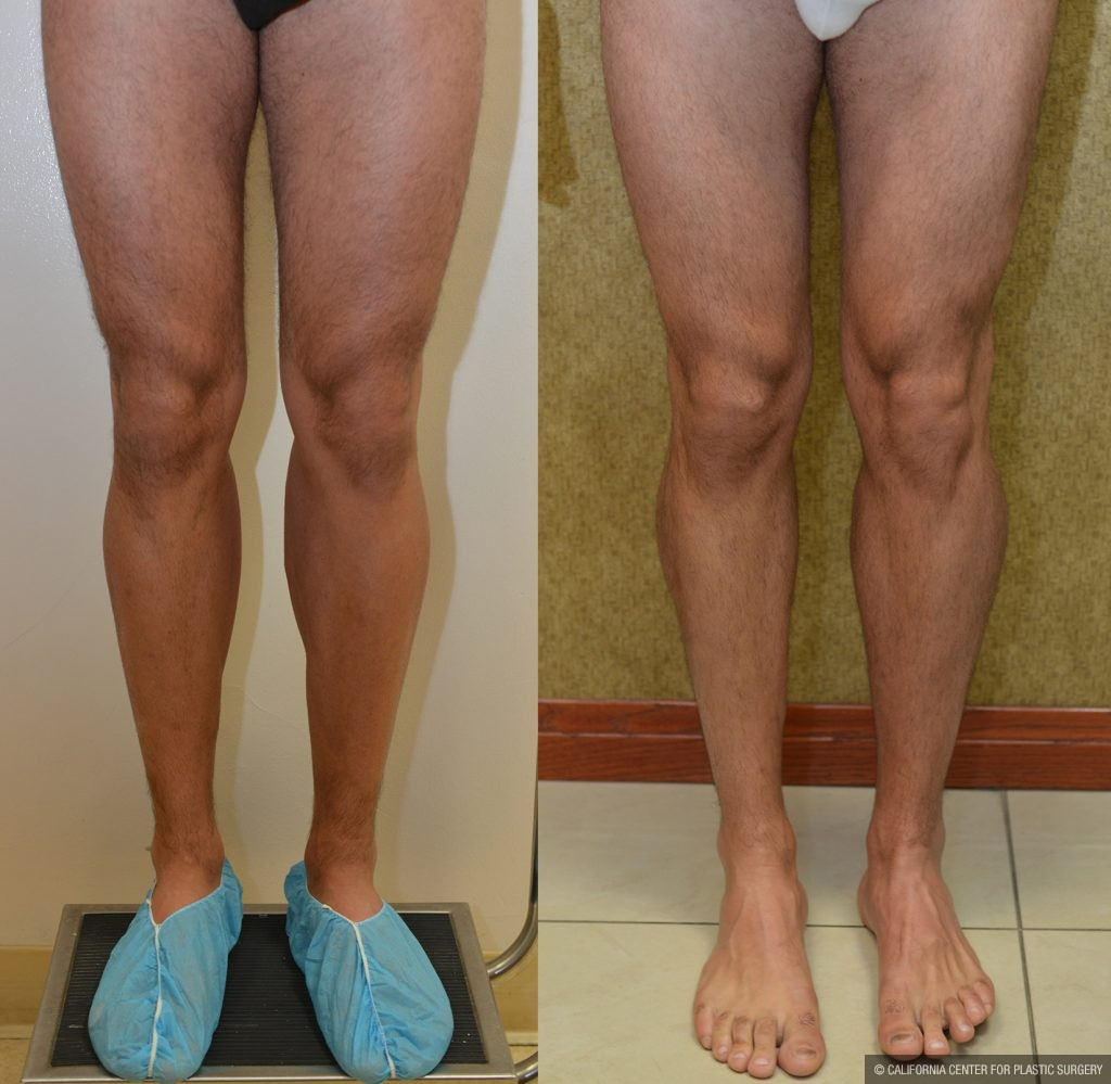 Calf Augmentation Before & After Patient #10881