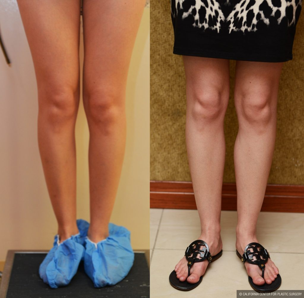Calf Augmentation Before & After Patient #10897