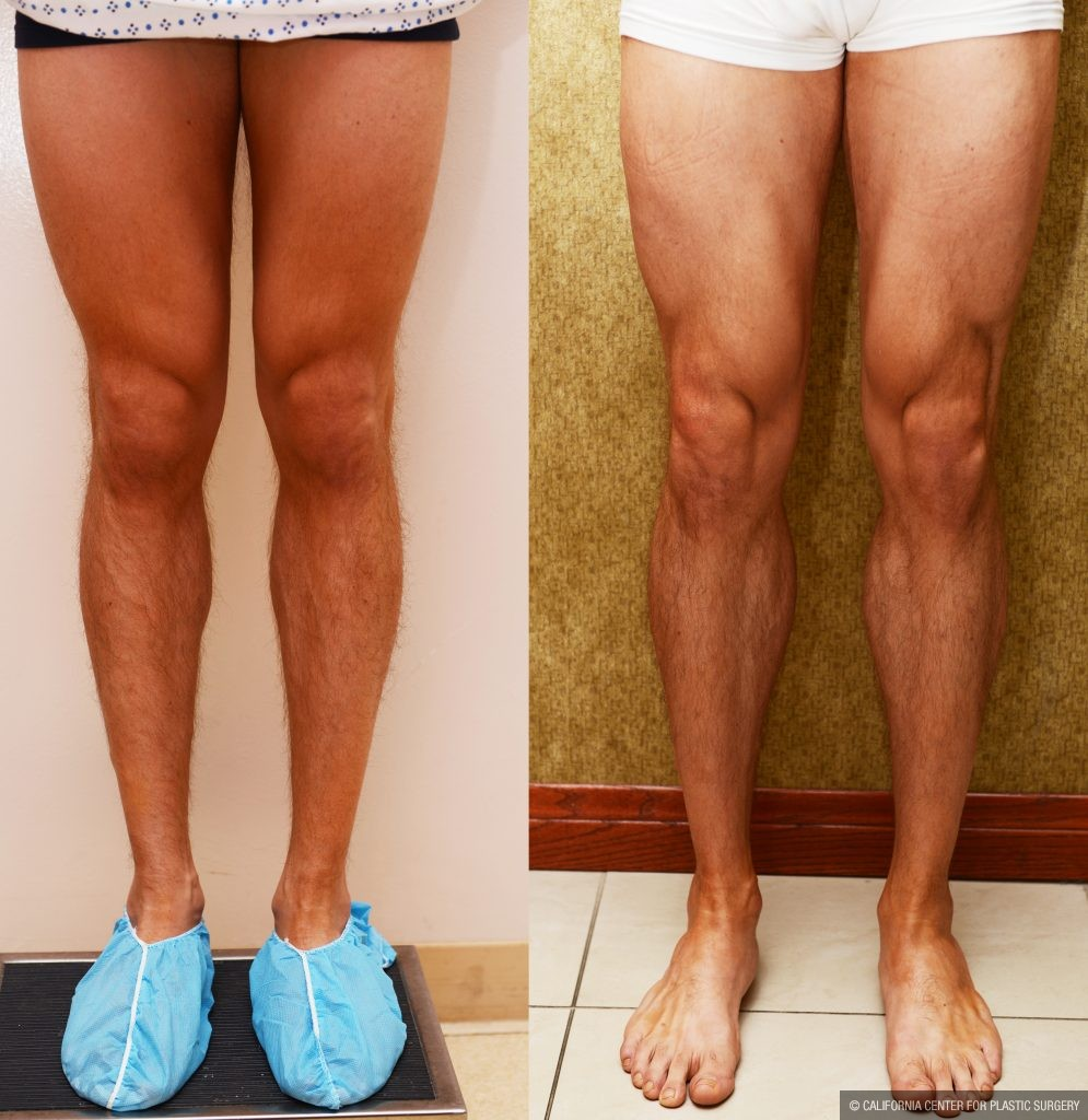 Calf Augmentation Before & After Patient #10901
