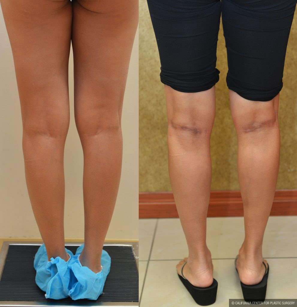 Calf Augmentation Before & After Patient #10906