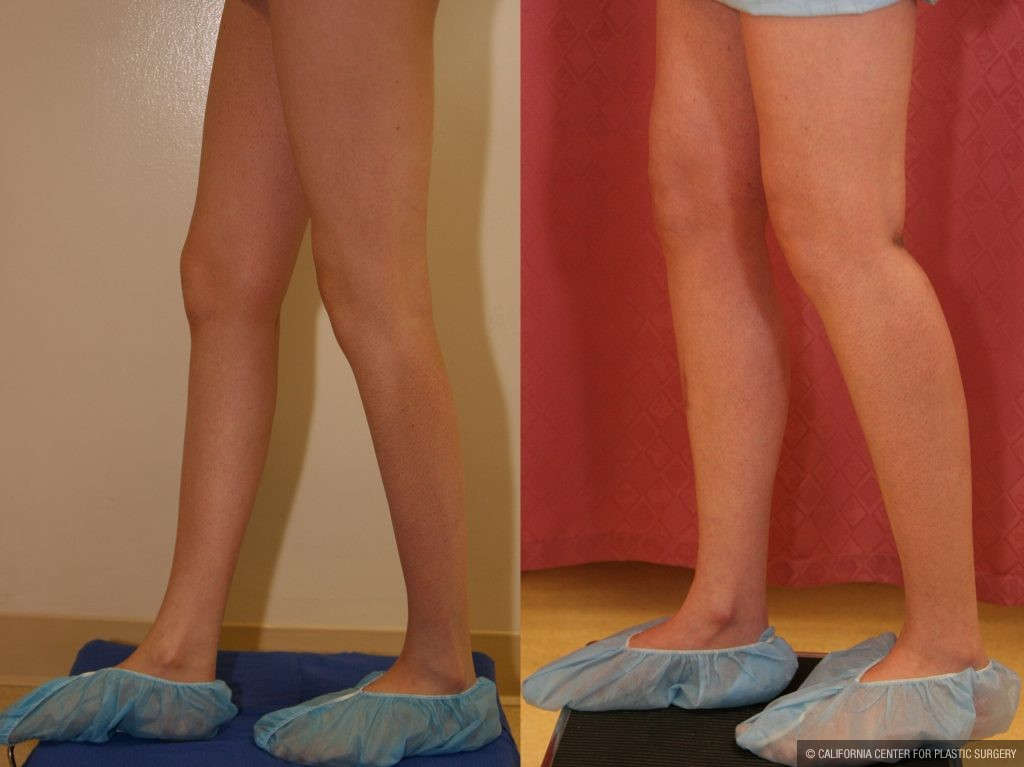 Calf Augmentation Before & After Patient #10851