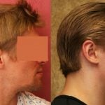 Ear (Otoplasty) Before & After Patient #10922
