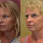 Eyelid (Blepharoplasty) Before & After Patient #10926