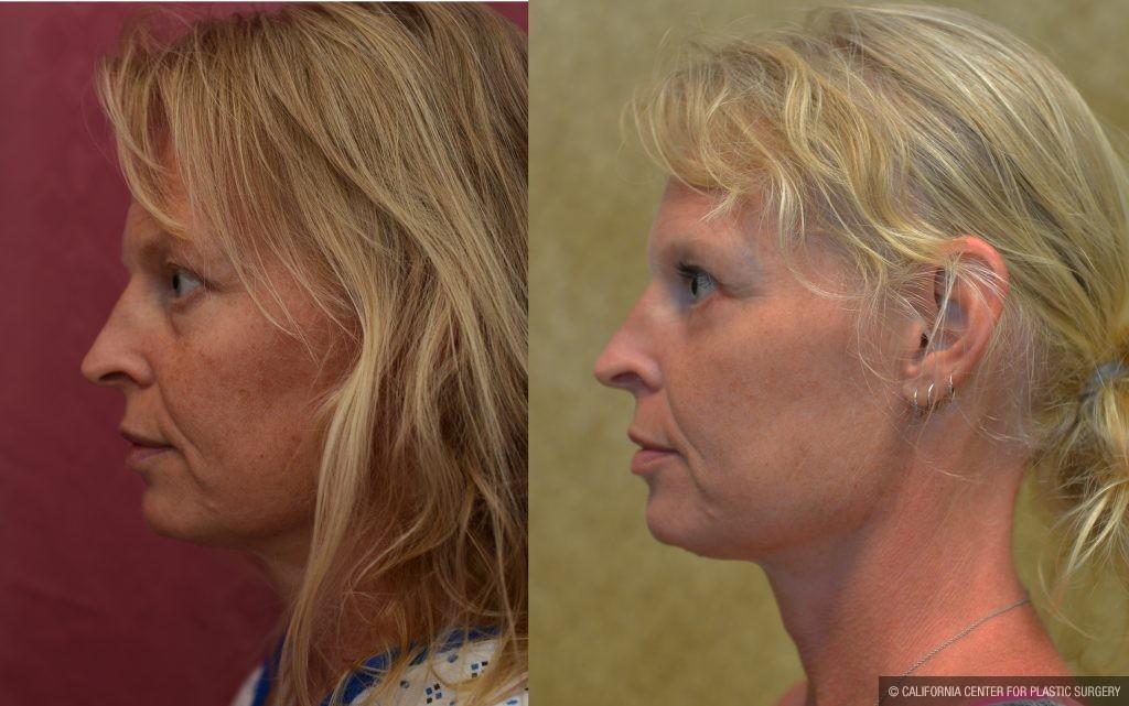 Eyelid (Blepharoplasty) Before & After Patient #10926