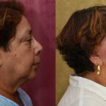 Eyelid (Blepharoplasty) Before & After Patient #10931
