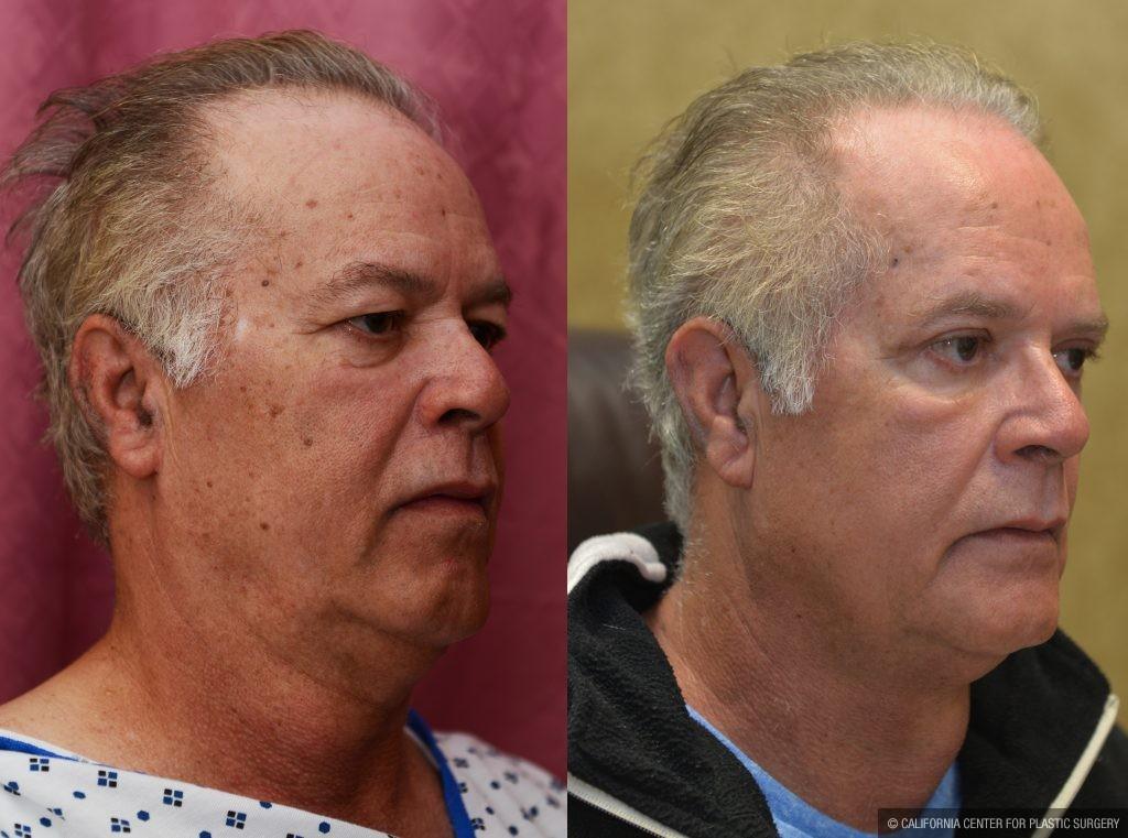 Eyelid (Blepharoplasty) Before & After Patient #10936