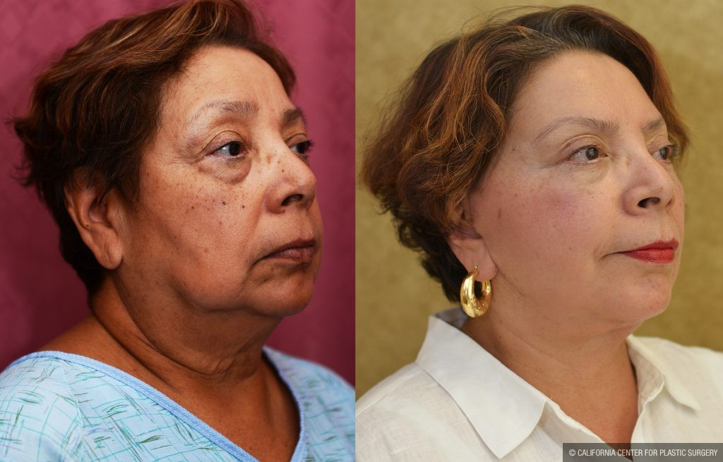 Eyelid (Blepharoplasty) Before & After Patient #10931