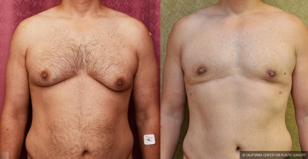 breast reduction before and after pictures  613248