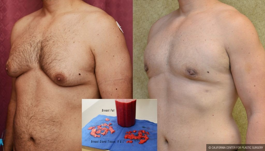 Male Breast Reduction Before & After Patient #10949