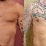 Male Breast Reduction Before & After Patient #10944