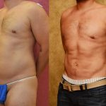 Liposuction Abdomen Medium Before & After Patient #10954