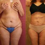 Liposuction Before & After Patient #10980