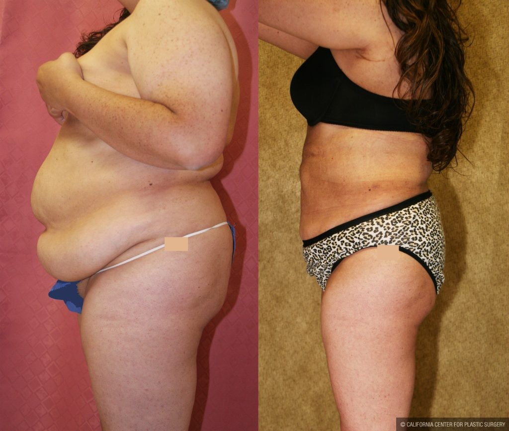 Liposuction Abdomen Plus Size Before & After Patient #10965