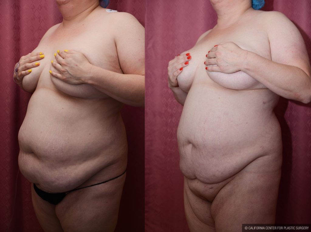 Liposuction Abdomen Plus Size Before & After Patient #10970