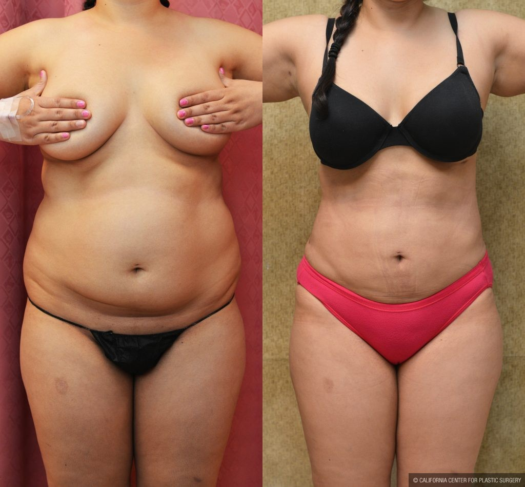 Liposuction Abdomen Plus Size Before & After Patient #10974