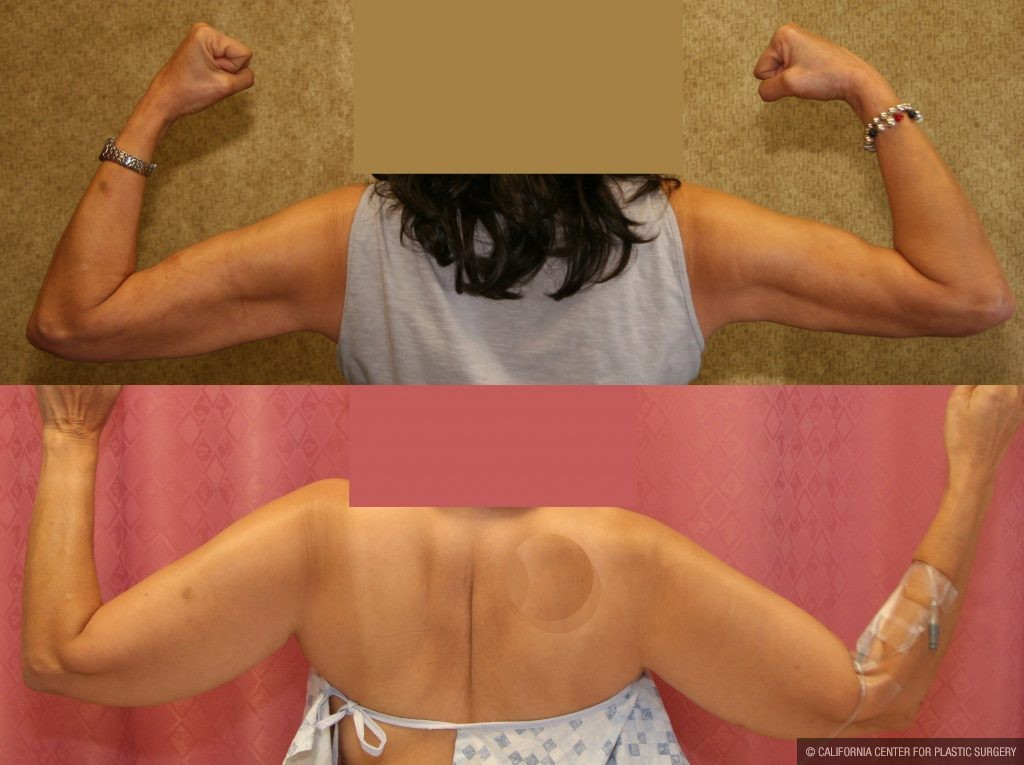 Liposuction Arms Before & After Patient #10977