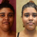 Neck & Face Liposuction Before & After Patient #10985
