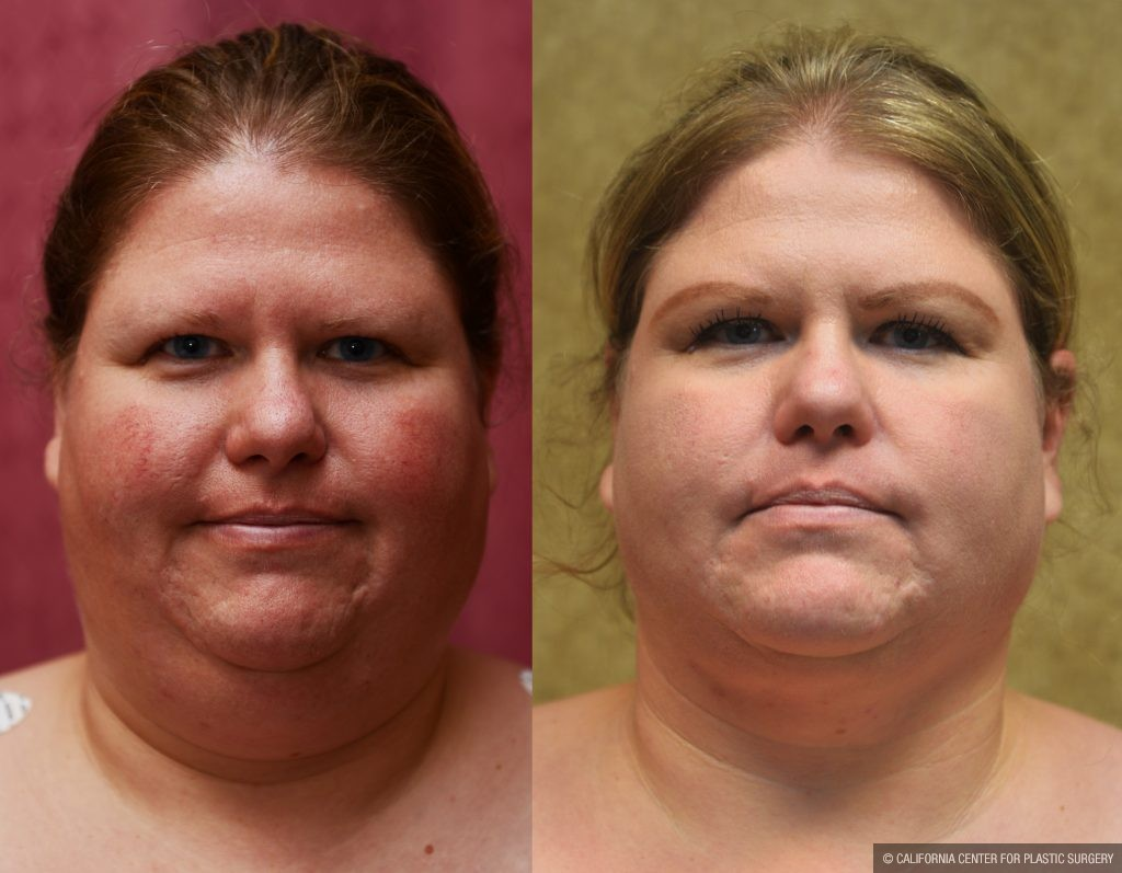 Neck & Face Liposuction Before & After Patient #10993