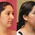Neck & Face Liposuction Before & After Patient #11005