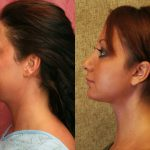 Neck & Face Liposuction Before & After Patient #10989