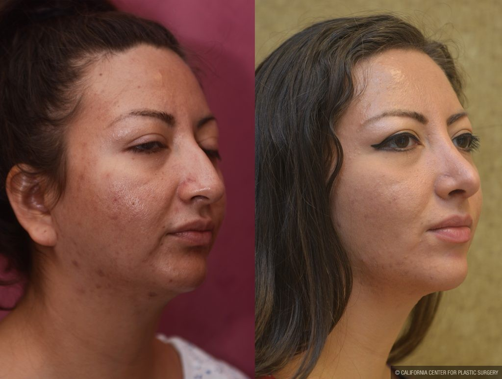 Hispanic Rhinoplasty Before & After Patient #11020