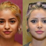 Hispanic Rhinoplasty Before & After Patient #11013