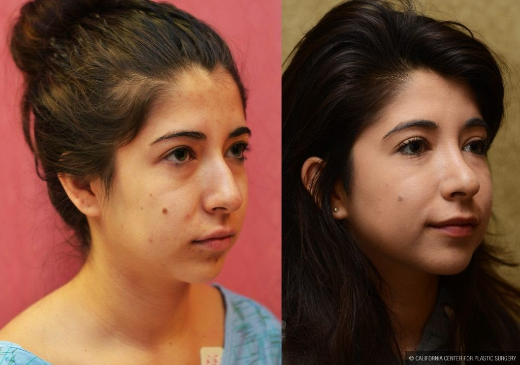 Hispanic Rhinoplasty Before & After Patient #11026