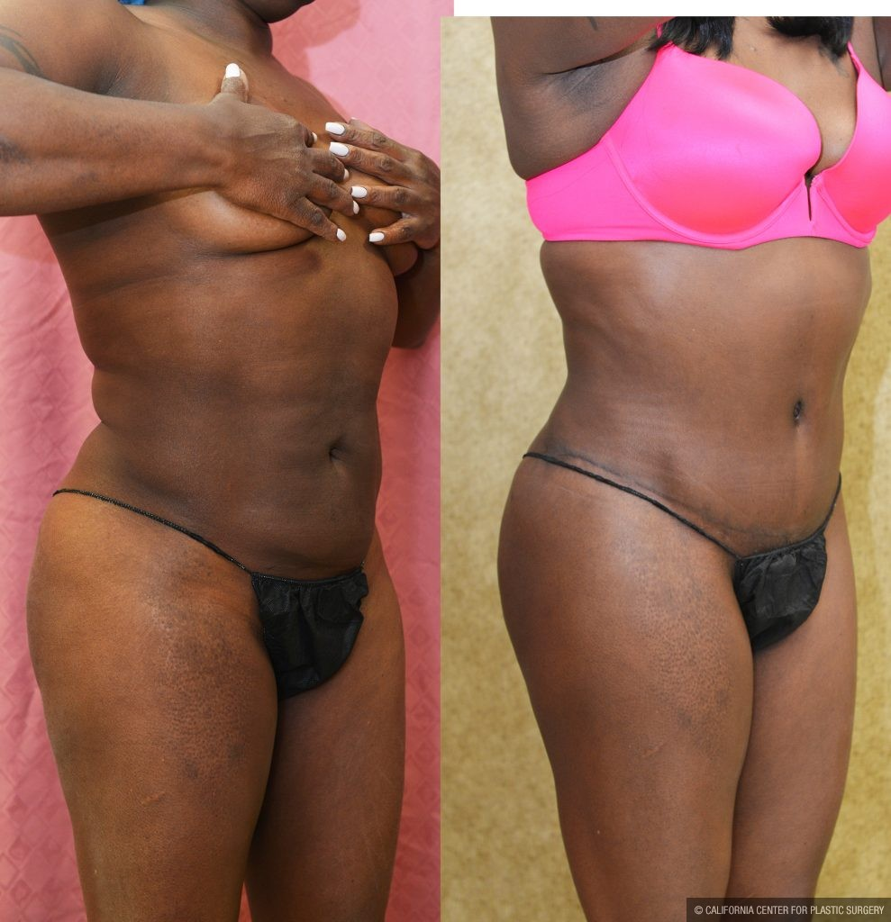 Tummy Tuck Small Size Before & After Patient #11033