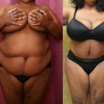 Tummy Tuck Plus Size Before & After Patient #11037