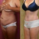 Tummy Tuck Medium Size Before & After Patient #11042