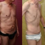Tummy Tuck Small Size Before & After Patient #11075