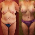 Tummy Tuck Medium Size Before & After Patient #11083